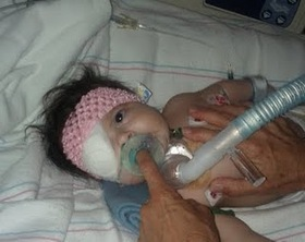 Baby Leah after surgery.jpg